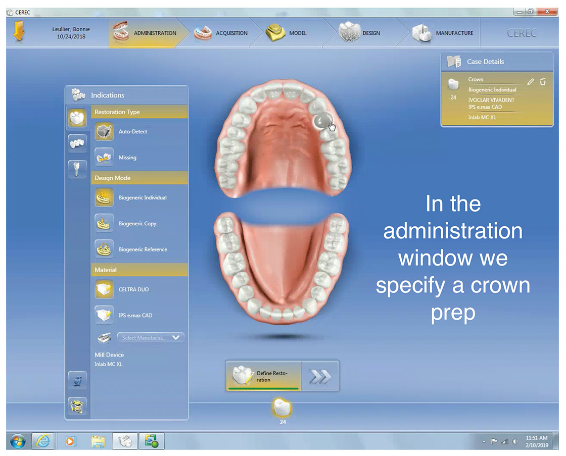 Intraoral scanning and digital models