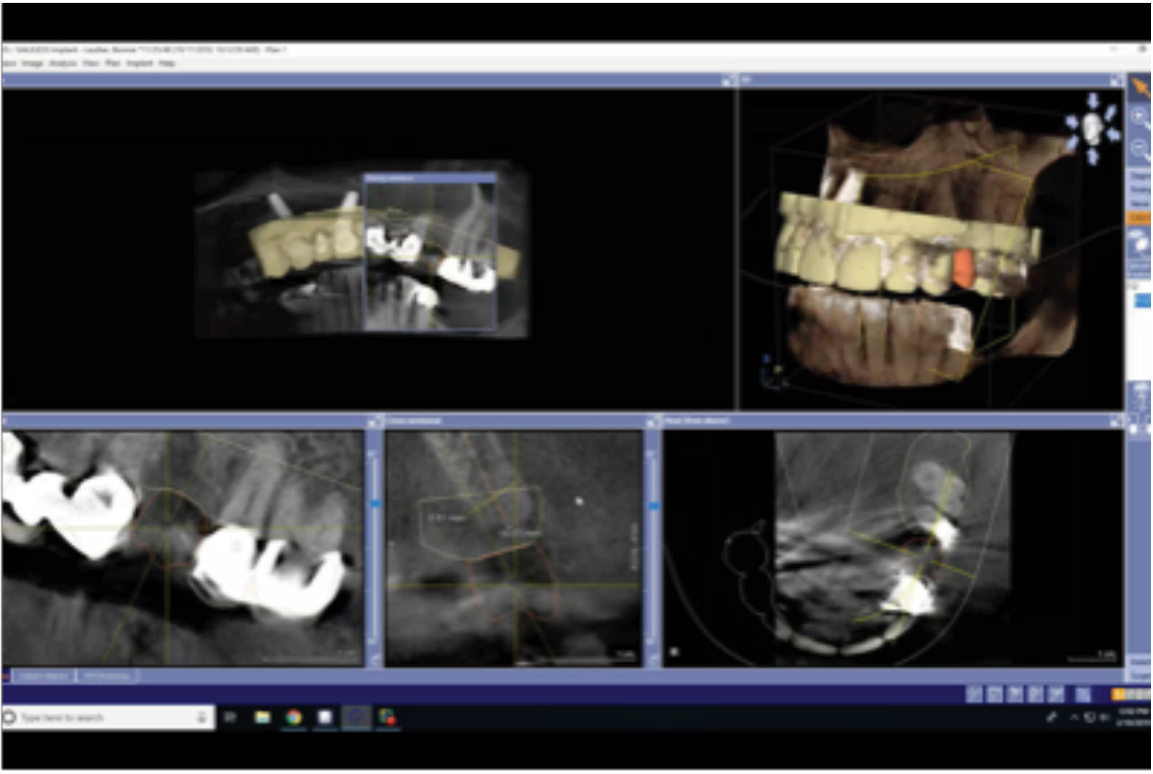 Completed stitch of CAD/CAM data to CBCT.