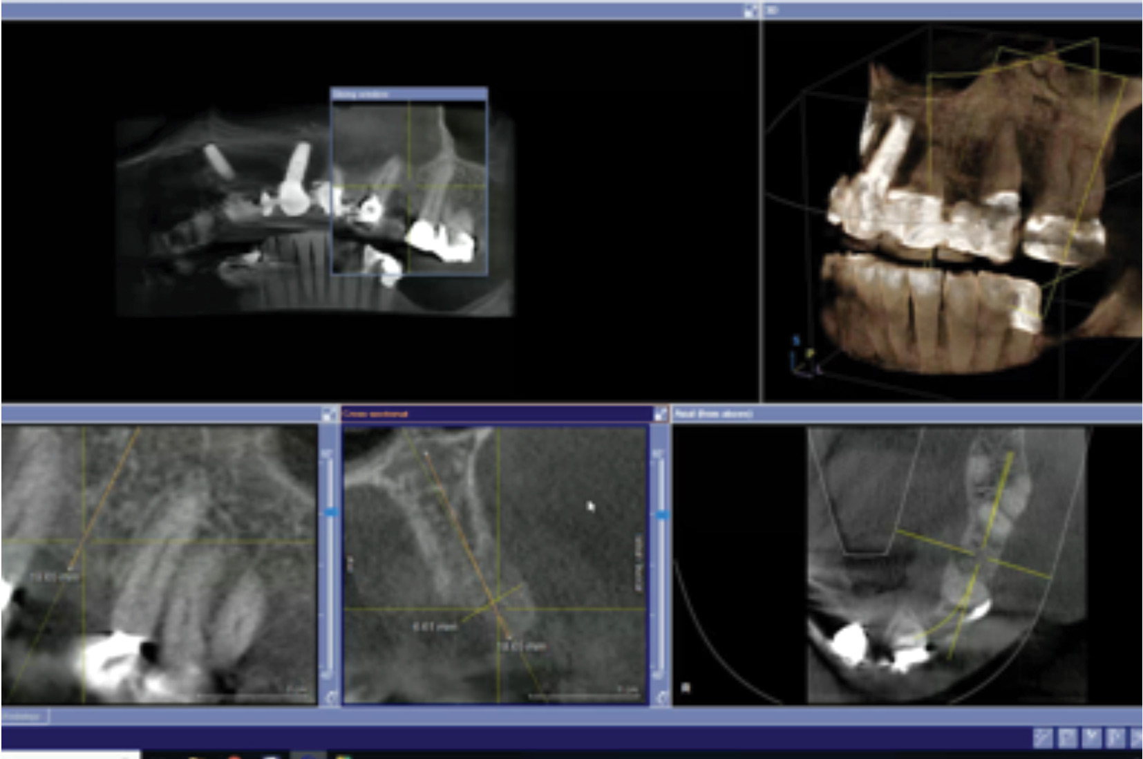The post gbr CBCT.