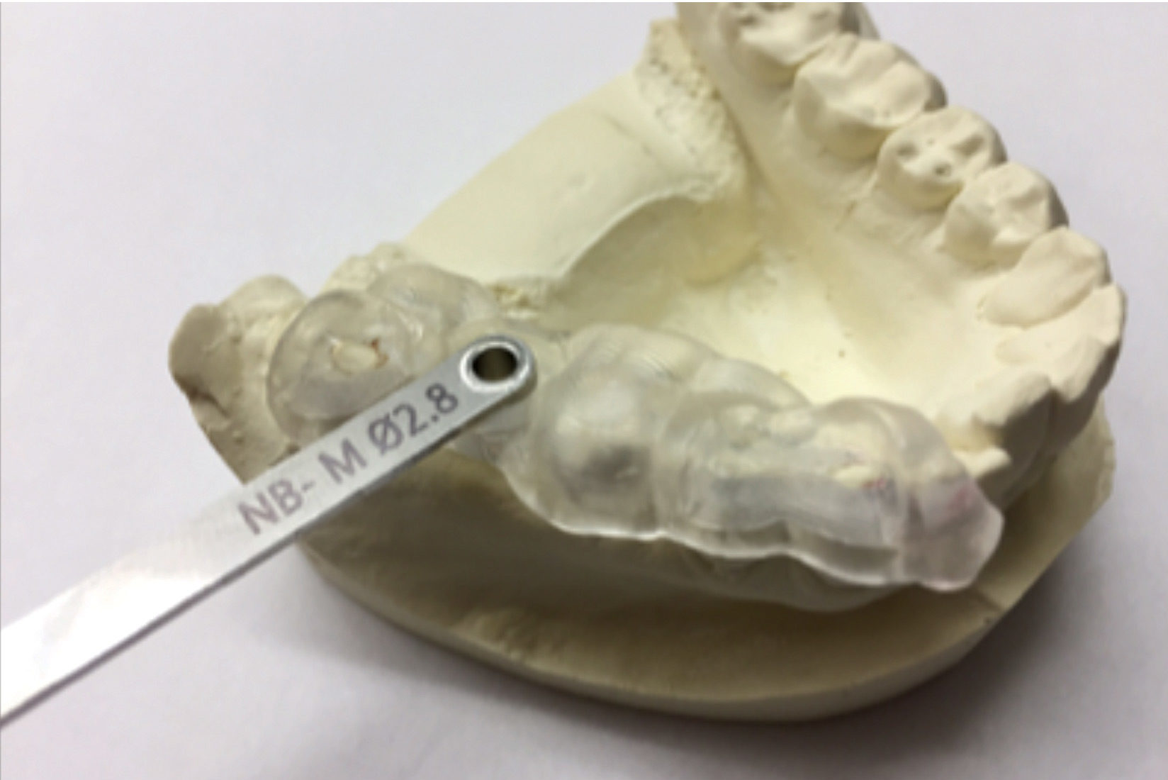An example of a surgical guide and key system. CEREC