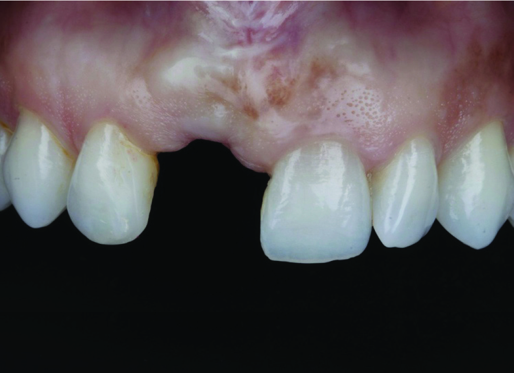 Pre-operative condition following implant failure in site of a maxillary right central incisor.