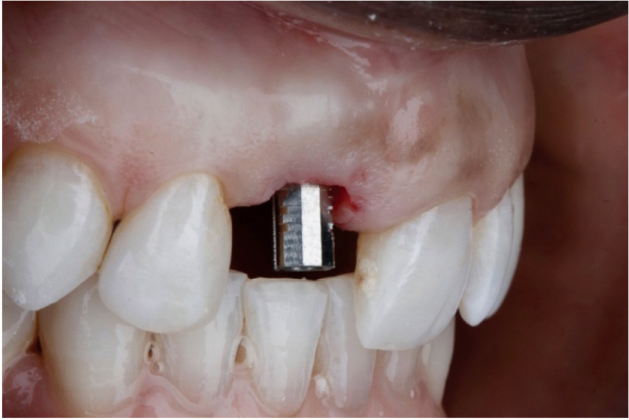 Following implant integration, try-in of a provisional temporary abutment is performed and adjusted.