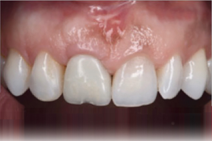 Following tissue maturation, fine tuning of the provisional restoration is performed to have a symmetrical length and gingival zenith for both central incisors