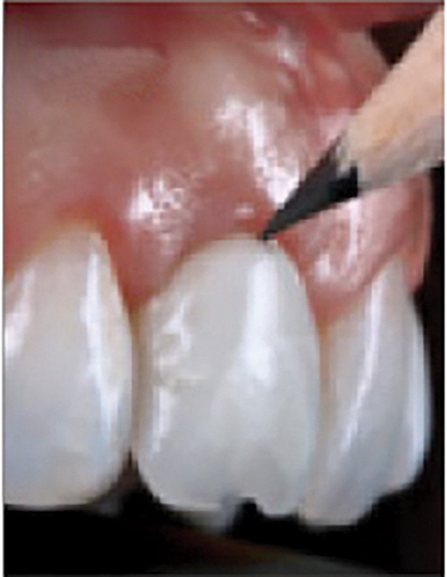 The Gingival Zenith is outlined to allow for extra-oral adjustments to be performed.