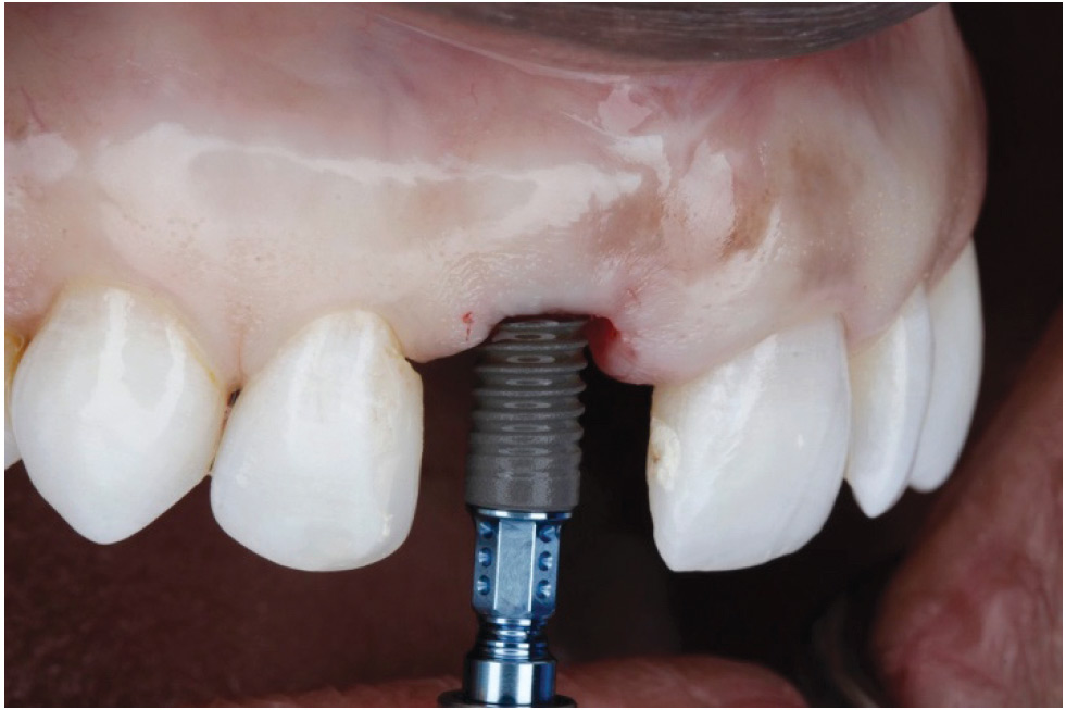 Implant placement is performed utilizing a Straumann bone level tapered 4.1x12 mm with insertion torque value of 40Ncm.