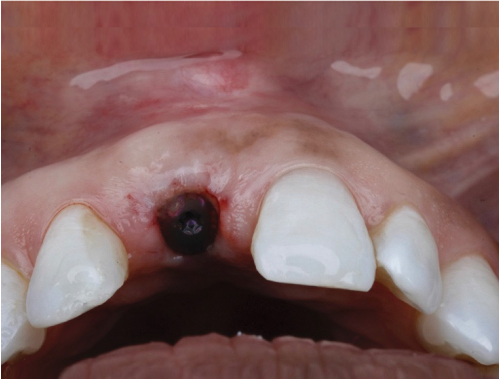 Minimally Invasive Surgical And Prosthetic Management Of A Failed Implant In The Esthetic Zone