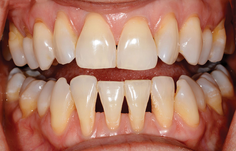 mild rotations, undersized maxillary lateral incisors, an uneven incisal edge display on the lower incisors, in addition to the wide range of black triangle sizes resultant from adult orthodontics.