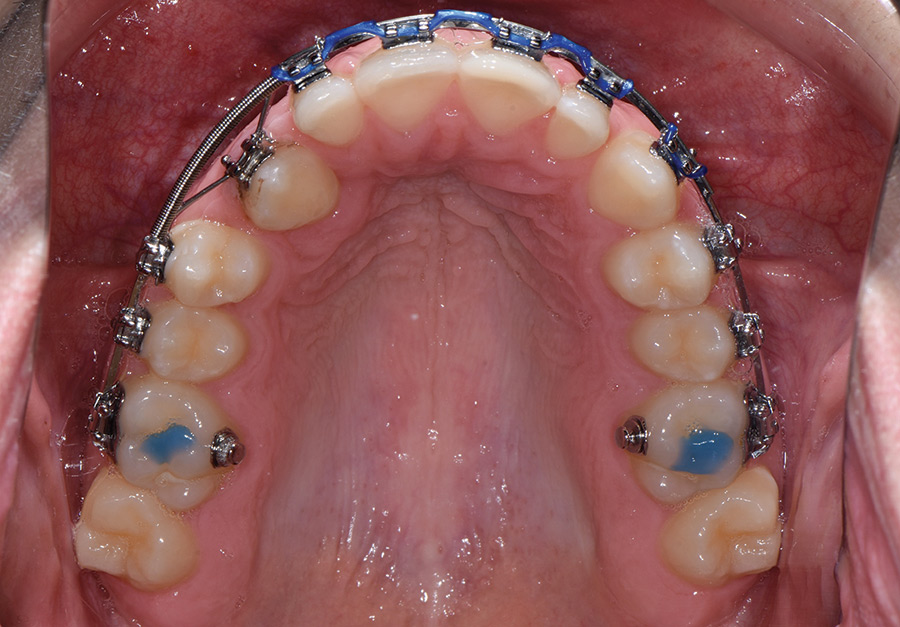An overlay wire in place moving 1.3 into the alveolus.