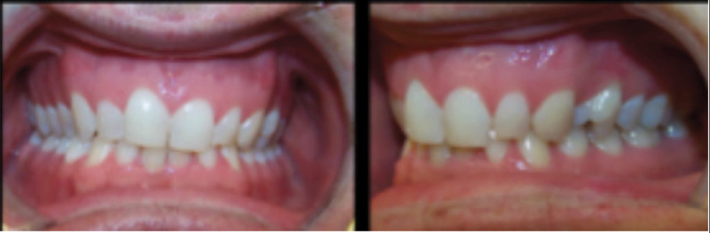 Pre-treatment photos of patient with maxillary cant, treated with braces.