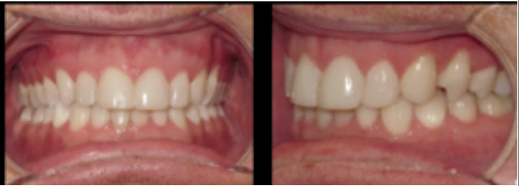 Photos after maxillary incisor restoration with bonding.