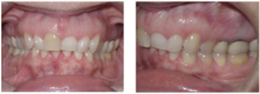Pre-treatment photos for patient who required leveling of the 11, 21 gingival margins.