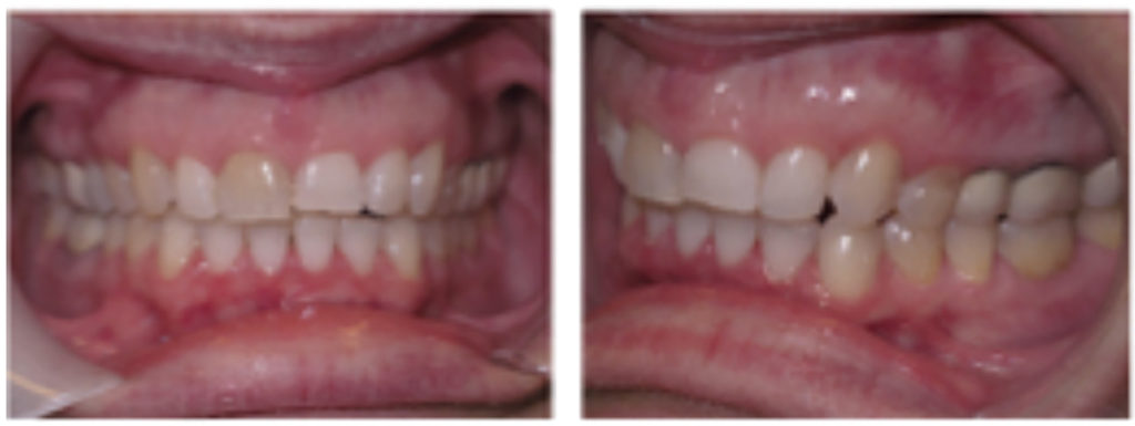 Post-treatment photos with gingival margins leveled, ready for crowns.