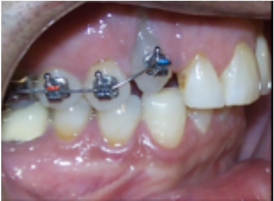 Sectional braces were used to extrude the 13 to bring the bone with it prior to extraction.