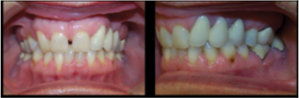 Pre-treatment records for a patient where space was reopened for 12, 22 implants using braces.