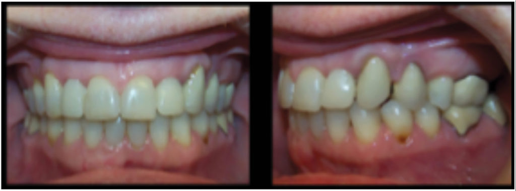 Post-treatment records for a patient where space was reopened at 12, 22 implants using braces.