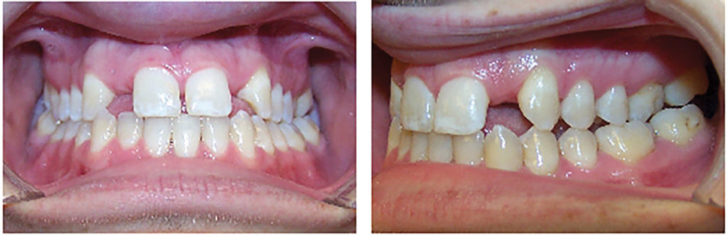Pre-treatment records for a patient where space was reopened for 12, 22 implants using aligners.
