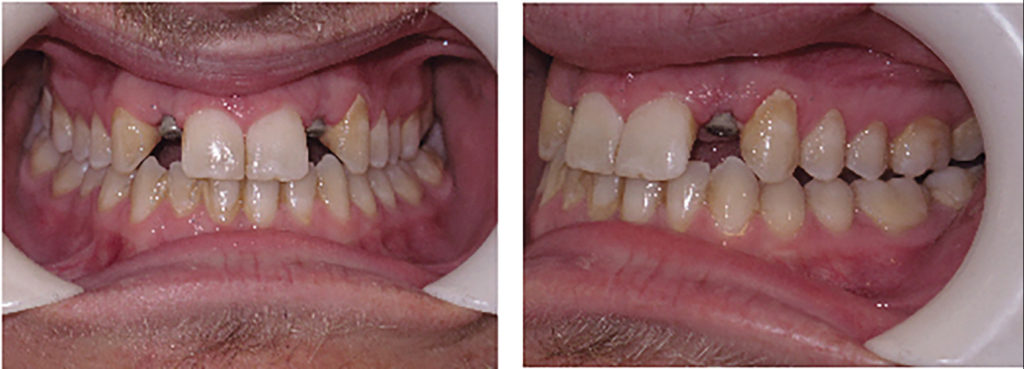 Post-treatment records for a patient where space was reopened for 12, 22 implants using aligners.