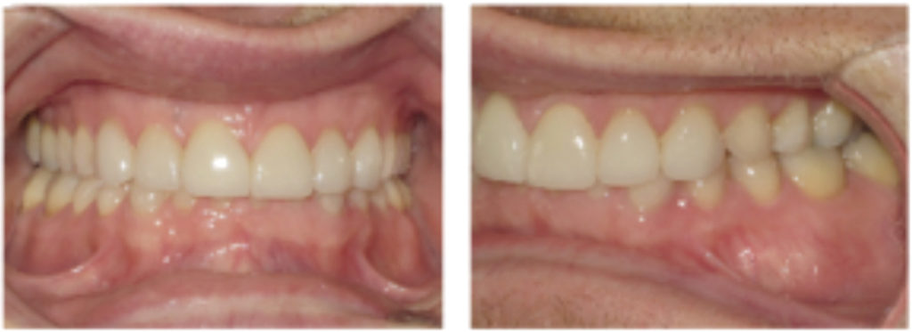Post-treatment: after restorations were placed.