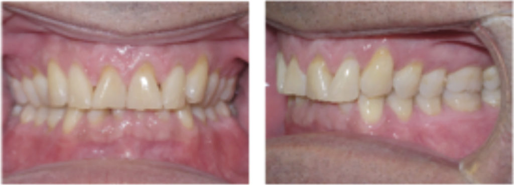 Pre-treatment records for a patient with deep bite and worn incisal edges.