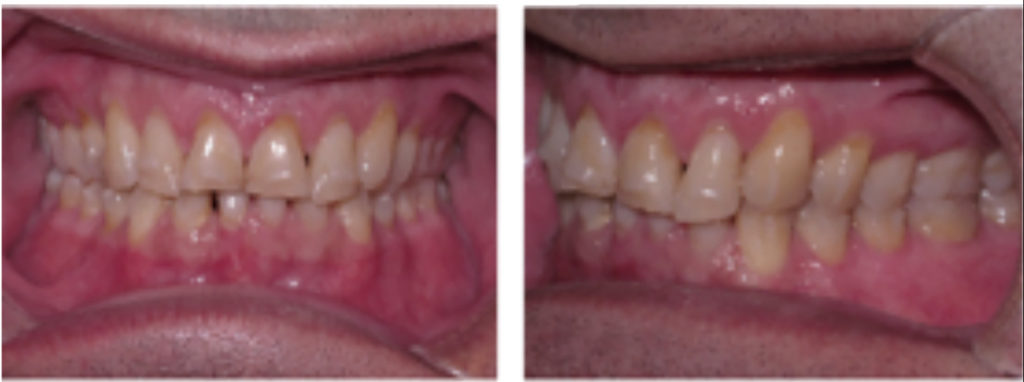 Mid treatment records for a patient with deep bite and worn incisal edges.