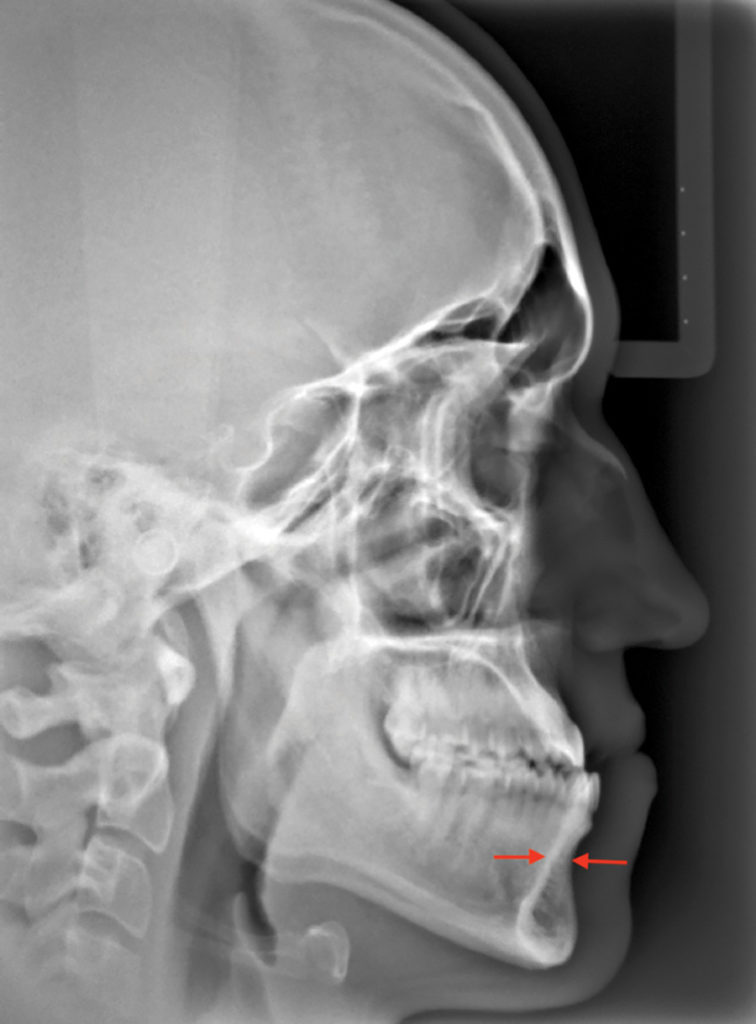 Skeletal Class III with narrow alveolar housings unsuitable for non-surgical camouflage.