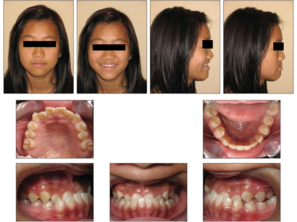 Intraoral and extraoral photographs;