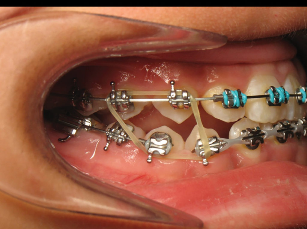 Interarch elastics for closure of lateral open bite