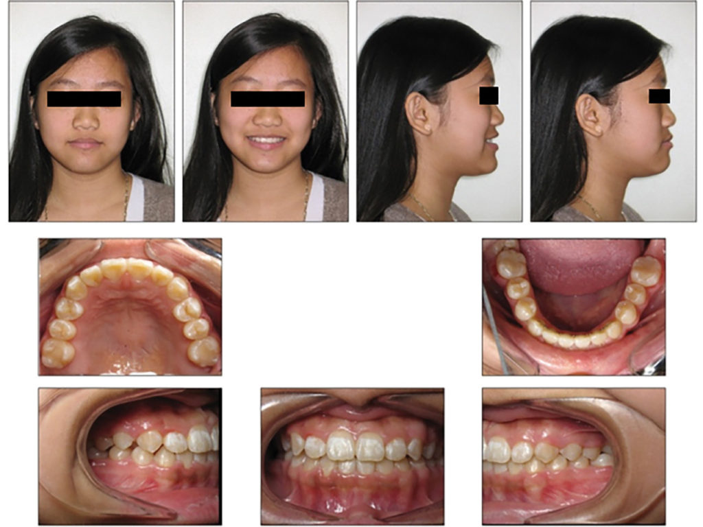 Intraoral and extraoral photographs