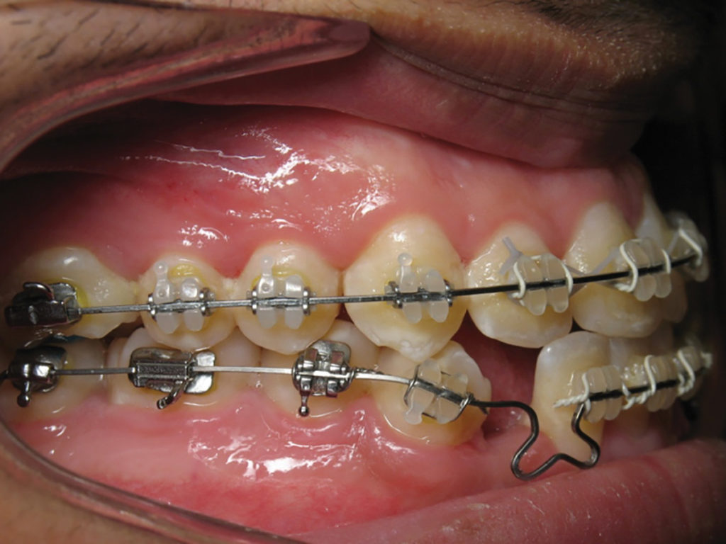 View of right buccal segment.