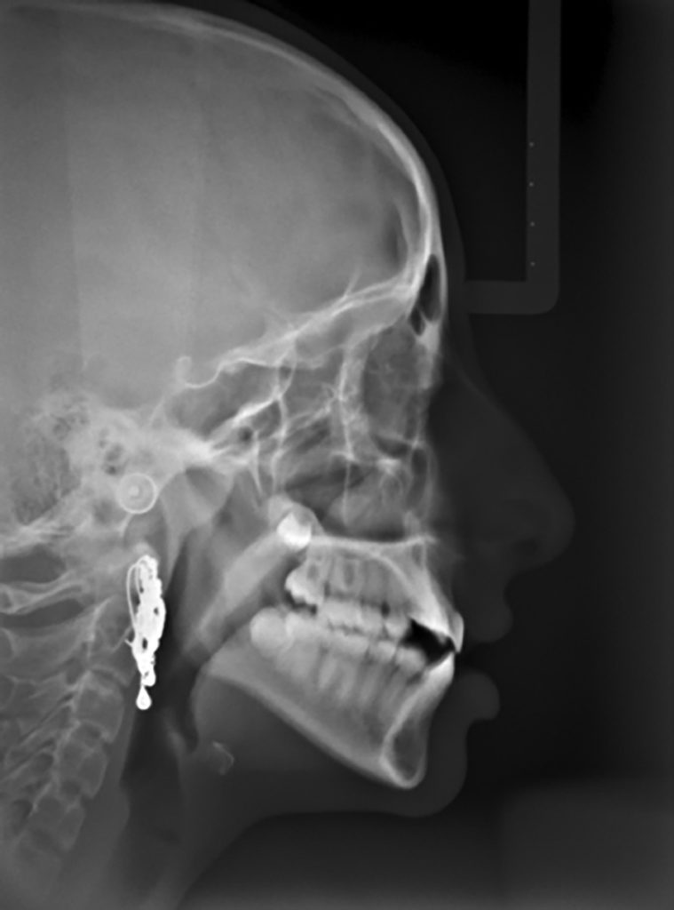 Lateral cephalometric radiograph.