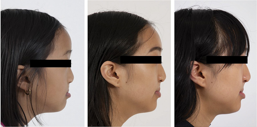 Extraoral photographs of a female with a history of unilateral cleft lip and palate during growth