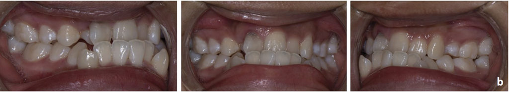 Intraoral photograph of the malocclusion of the same patient at 17 years of age