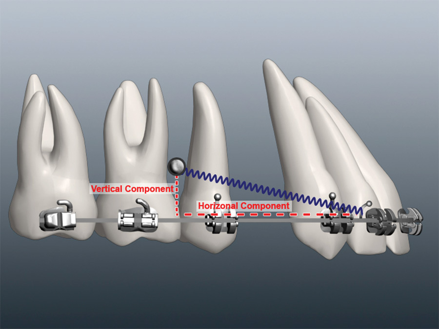 Interdental MSI loaded using coil springs.