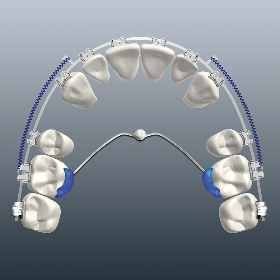 TPA-MSI appliance design for en-masse retraction of anterior teeth.