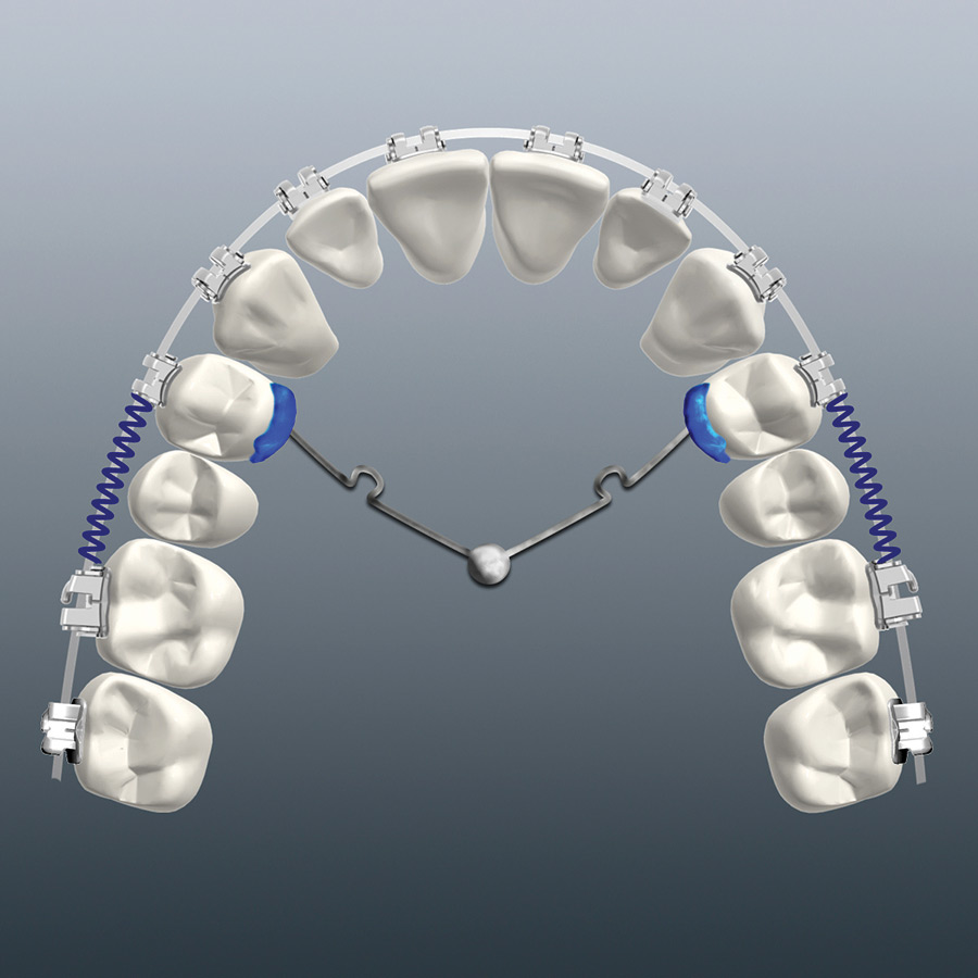 TPA-MSI appliance design for maxillary molar distalization.