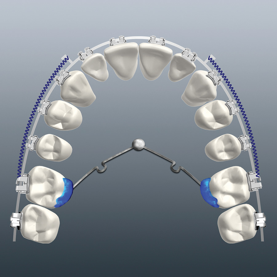 TPA-MSI design for maxillary molar distalization.