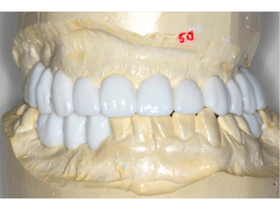 Diagnostic wax-up showing proposed occlusal scheme as well as final tooth sizes, shapes and positions