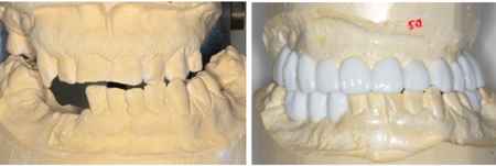 Prosthetic tooth wax-up showing proposed correction of anterior cross-bite, final tooth sizes, shapes and positions
