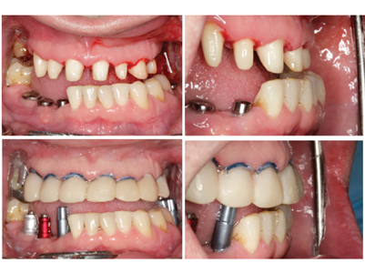 Preparation of teeth 13 - 24 to receive full-coverage crowns. Facial-lingual discrepance due to the cross-bite is evident. Cross-bite is then corrected