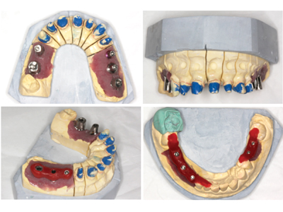 Maxillary and mandibular laboratory casts showing crown preparations, prefabricated and custom abutments in position, as well as verification jigs