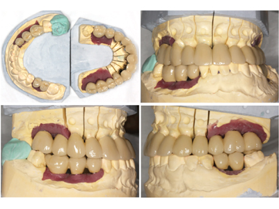 Porcelain-metal bridgework on laboratory casts. Crowns are splinted on both teeth and implants (16-15), (13-12-11), (21-22-23), (24), (25-26-27), (37-36), (43-45-46)