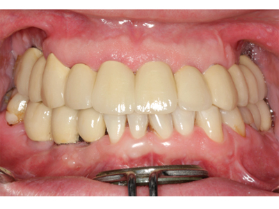 Intraoral view of cemented tooth and implant crowns