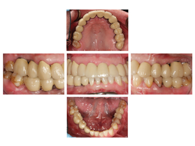 Occlusal and buccal intraoral views of the completed case