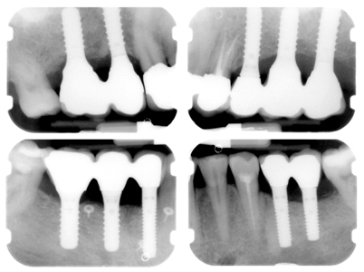 Radiographs of cement-retained implant bridgework (16-15), (25-26-27), (37-36), (43-45-46)