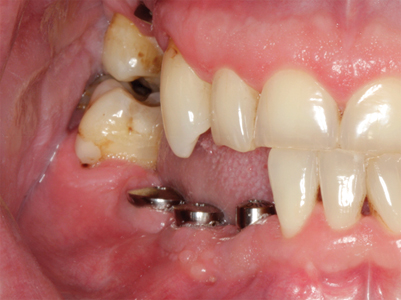 The minimum vertical interocclusal space for screw- and cement-retained implant crowns are 4-5 and 7-8mm respectively