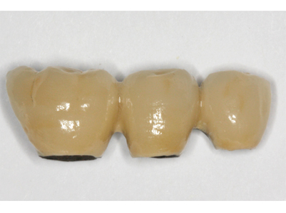 Splinted porcelain-fused-to-metal (PFM) implant crowns with hygienic contours permitting adequate plaque control