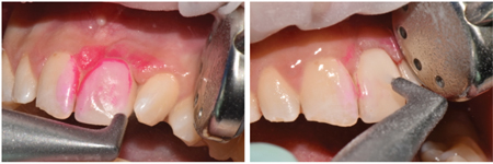 Supra-gingival guided biofilm removal with the use of air polishing.