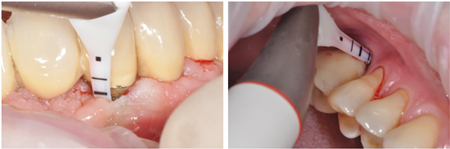 Sub-gingival biofilm removal with the use of air polishing.
