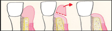 Gingivectomy( Sufficient amount of keratinized tissue/ Adequate crestal bone level).