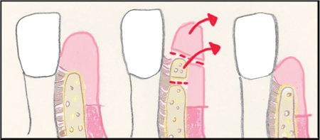 Gingivectomy and osseous surgery ( Sufficient amount of keratinized tissue/ Inadequate crestal bone level)